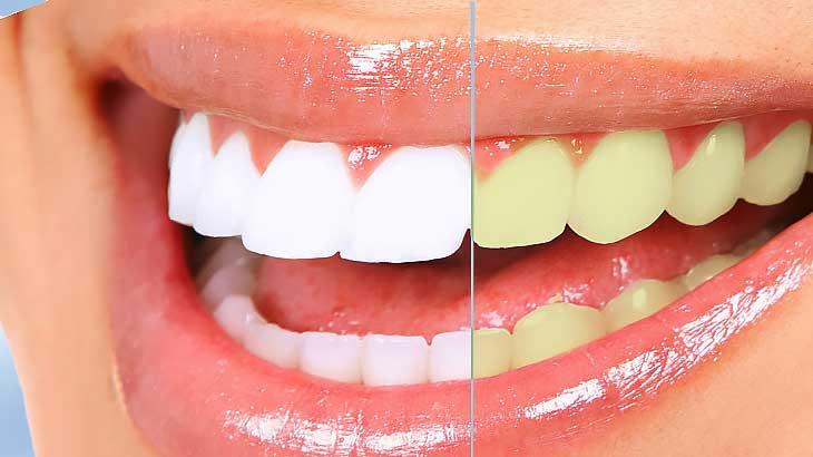 Как и чем отбелить зубы в домашних условиях