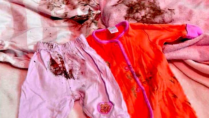 плесень на детской одежде как удалить