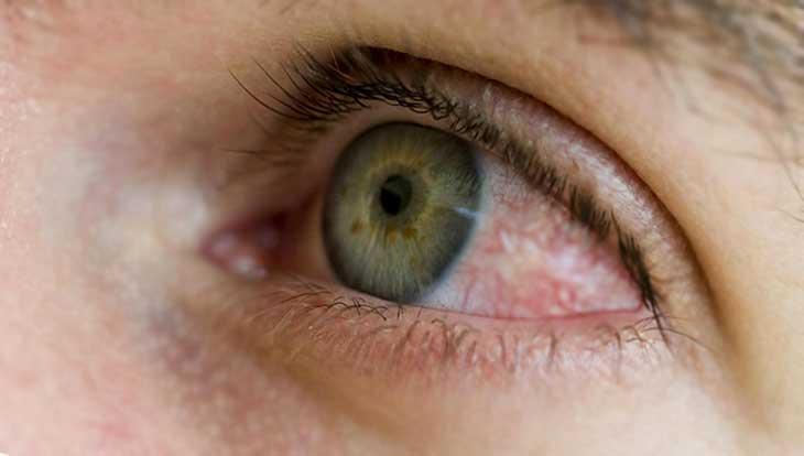 Что такое синдром сухого глаза, причины, лечение, профилактика